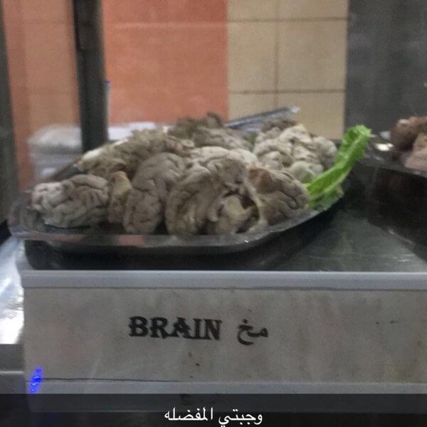 Dish brain